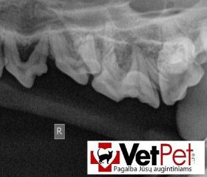 Dantų rentgenas