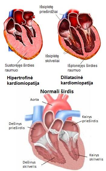 Cardiomyophaty