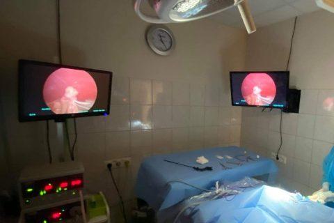 Laparoskopinės operacijos